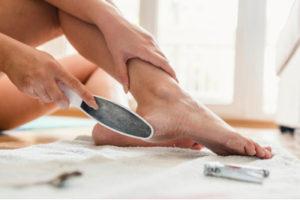 Žena si pemzou ošetřuje chodidla nohou, aby se zbavila kuří oko